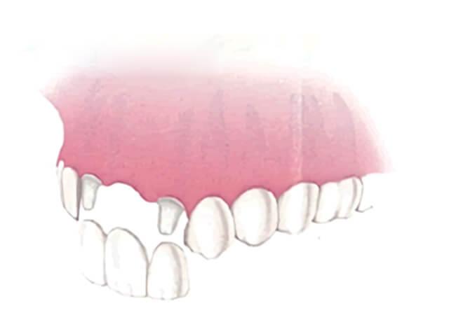 隣接した歯を支台にしたブリッジ