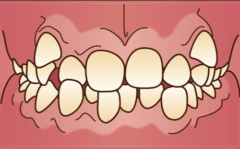 ガタガタの歯