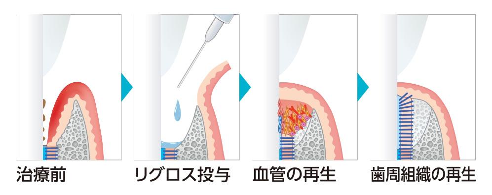 リグロスによる歯周組織の再生イメージ画像