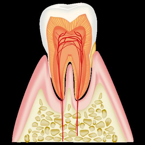 <進行度1> 歯ぐきがはれ、出血する