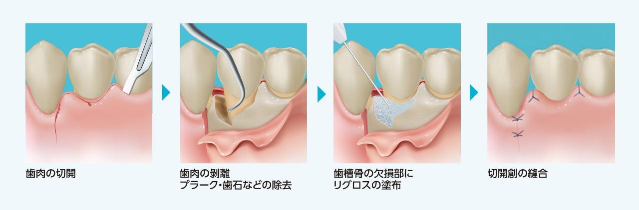 フラップ手術におけるリグロスの塗布イメージ画像