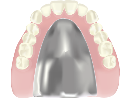 金属床義歯(金属床入れ歯)イメージ画像