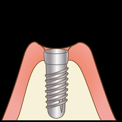 STEP2 インプラント体の埋入と治癒イメージ画像