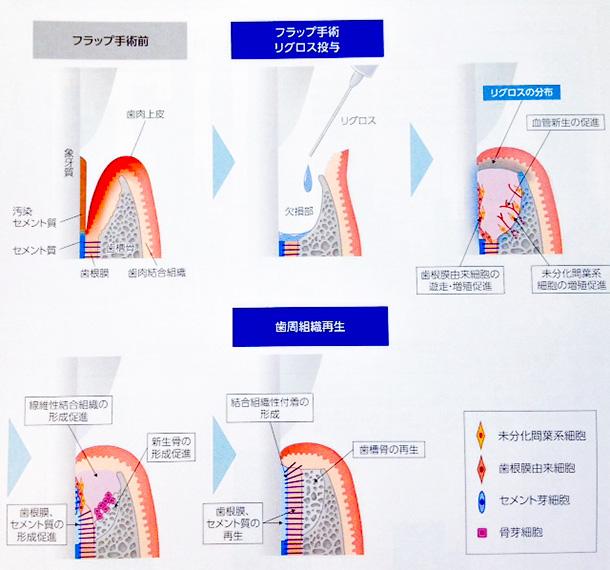 リグロスの歯周組織再生機序