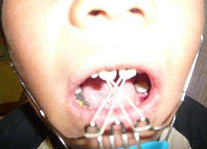 顎間ゴムによる上顎の牽引
