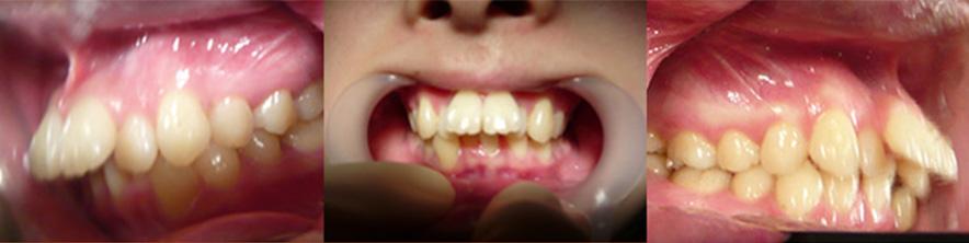 叢生の歯列