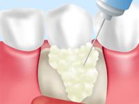 歯周再生医療