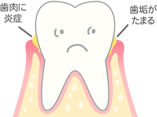 [進行度1] 歯茎がはれ、出血する
