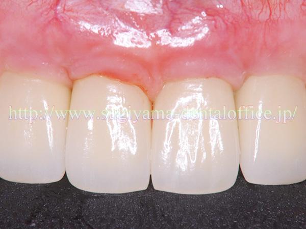 歯肉の腫れ