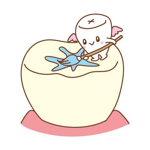 歯を削ることなく予防できるシーラント