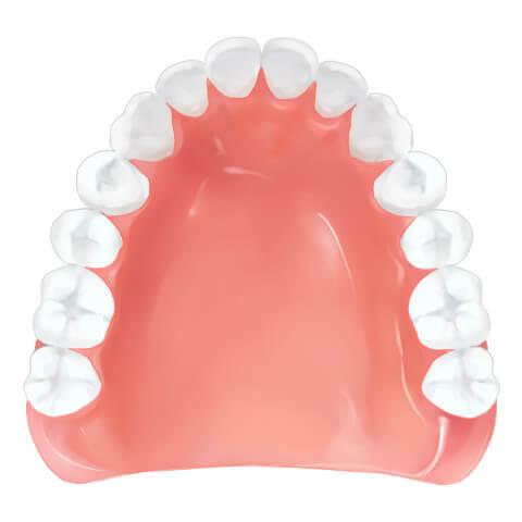 レジン床義歯(保険適応)