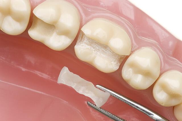 【C1 治療方法】虫歯を削る → 詰め物