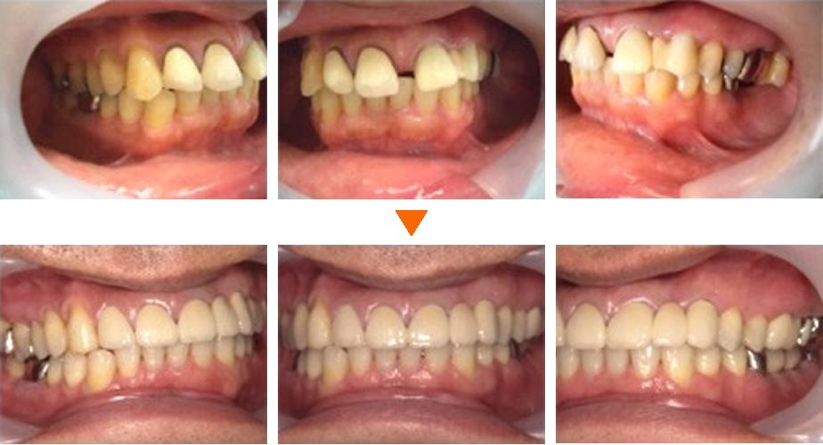 審美歯科症例①