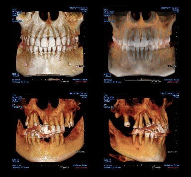 歯科用CT画像①