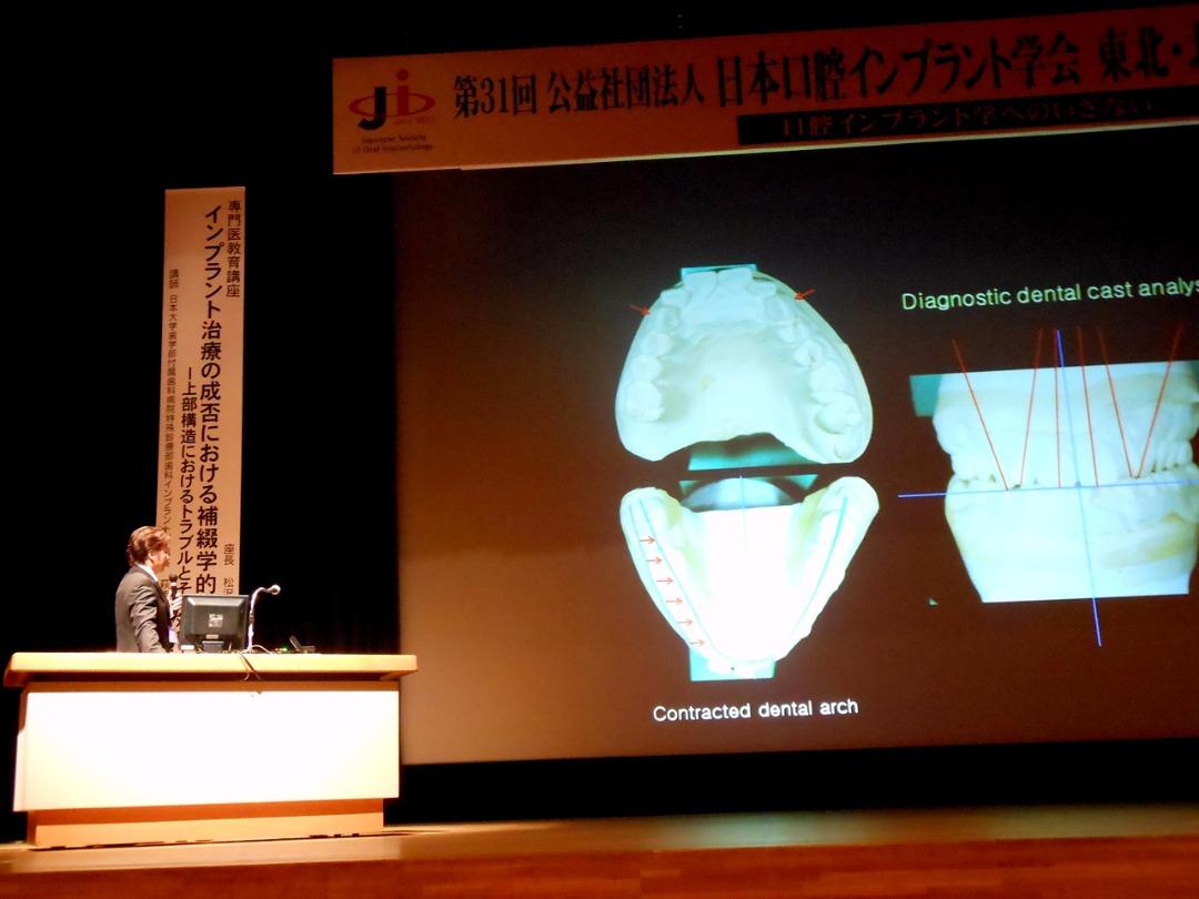 日本口腔インプラント学会での講演