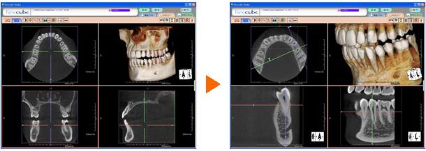 歯科用CT画像②