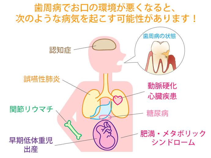 最近分かってきた、お口の環境と体の関係