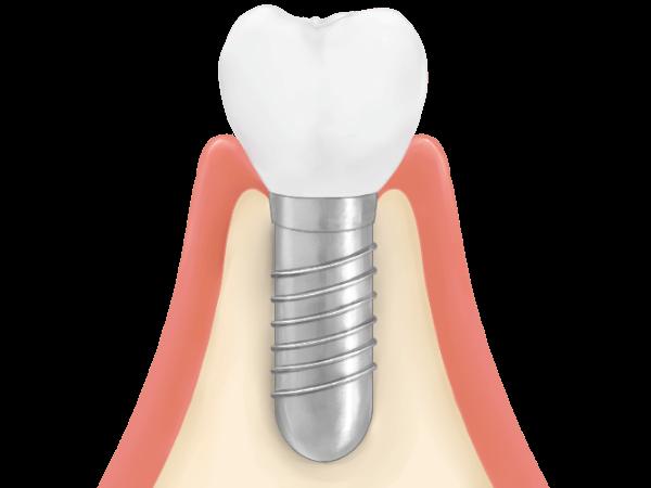 STEP5 人工歯の装着