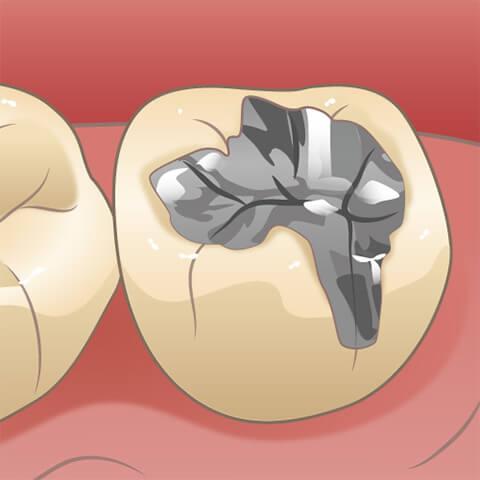 銀歯などを歯質に接着する