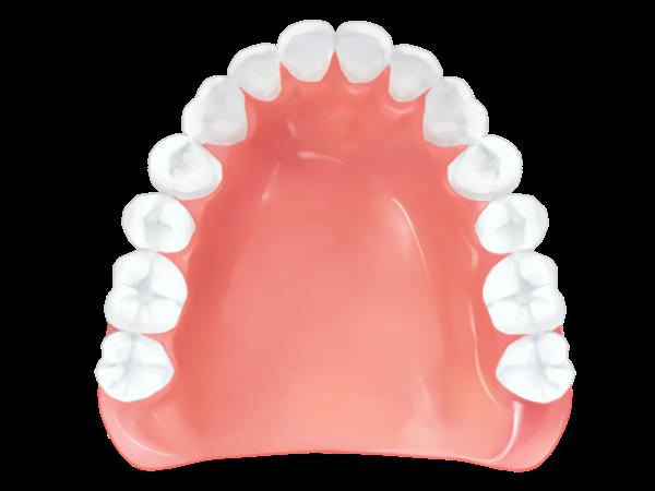 レジン床義歯(総義歯)