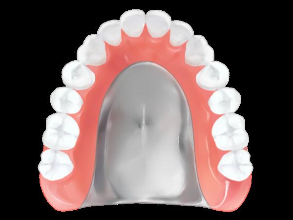 金属床義歯(総義歯)