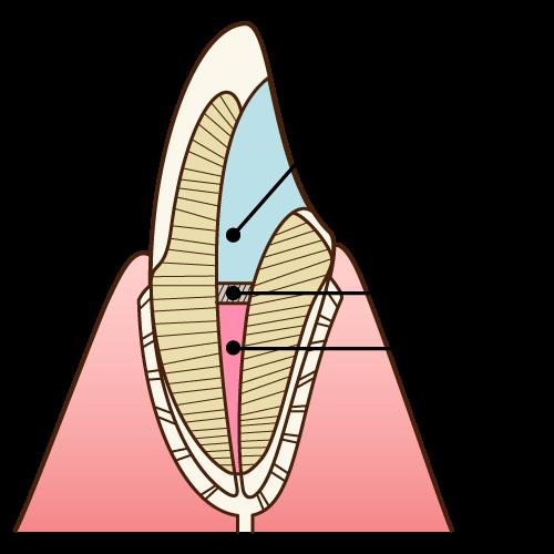 神経の無い歯のホワイトニング