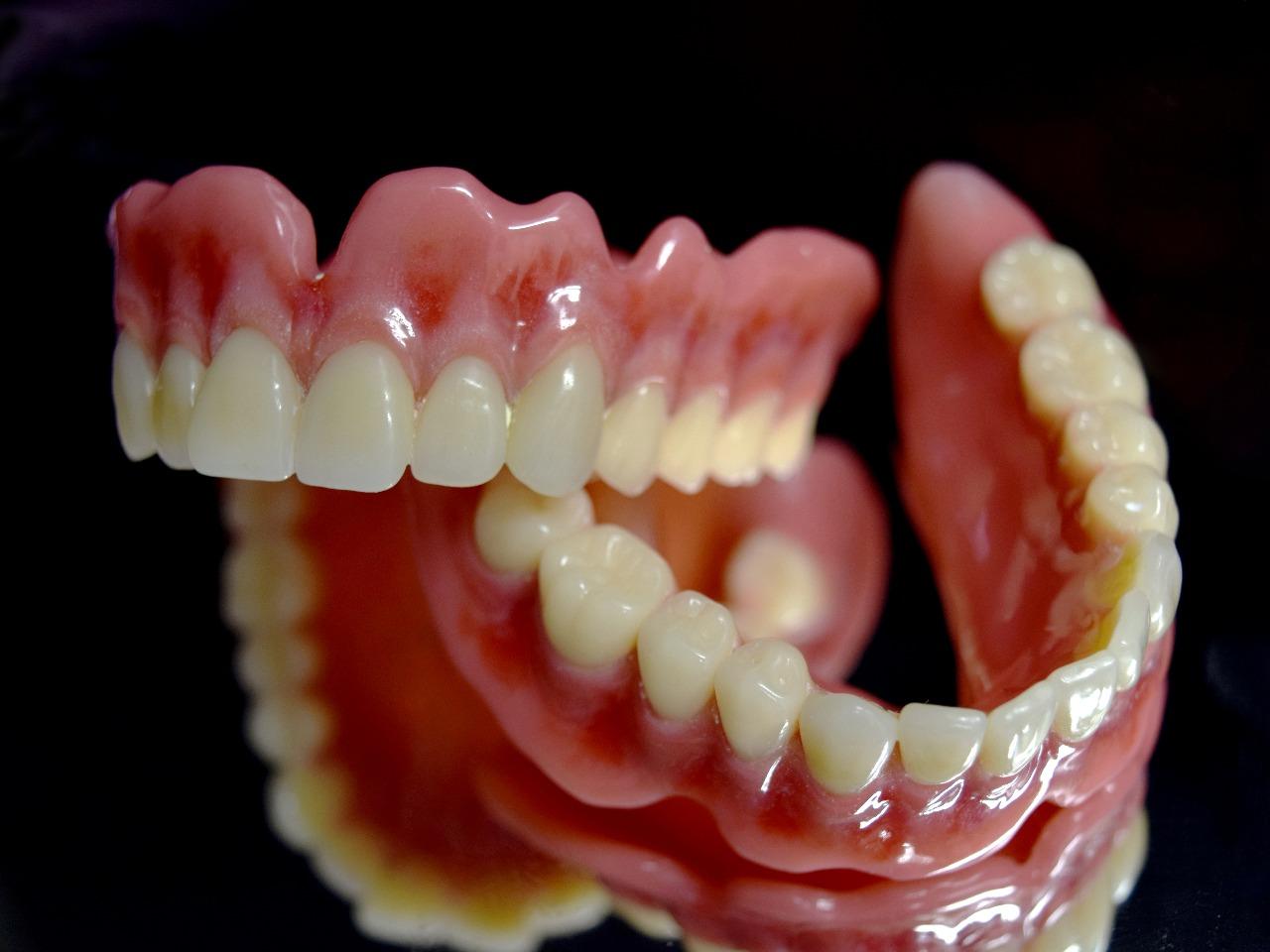 審美義歯とは