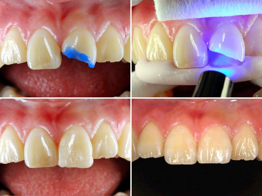 欠けた歯をコンポジットレジンで審美修復
