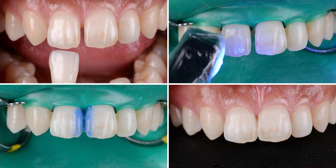 すきっ歯をコンポジットレジンで審美修復