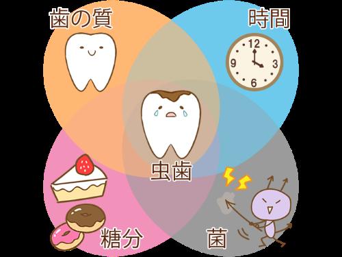 虫歯の原因となる要素