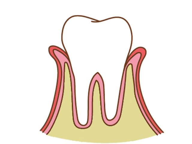 [進行度2]歯周炎の状態。 口臭を感じるようになる