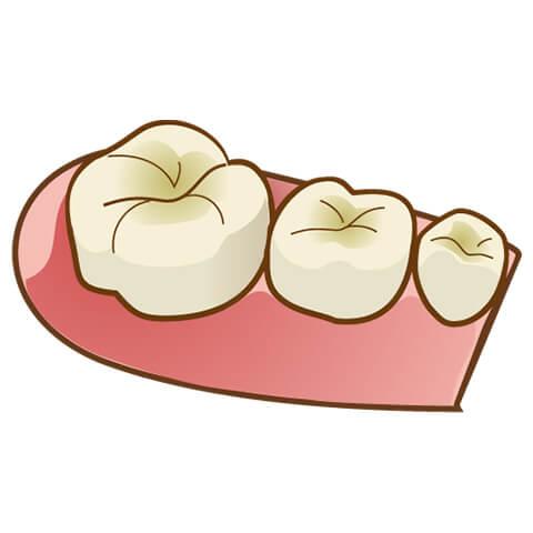 発達途中の歯はエナメル質や象牙質が薄い