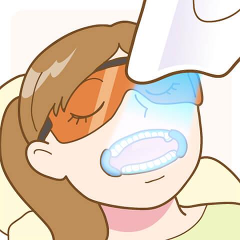 歯科医院で行うオフィスホワイトニング