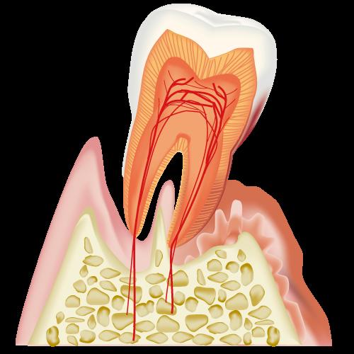 歯周病になってしまった歯と歯ぐき