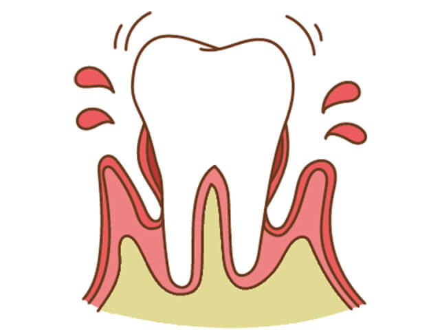 [進行度3] 歯槽骨の破壊が破壊されはじめた状態。歯がぐらついてくる