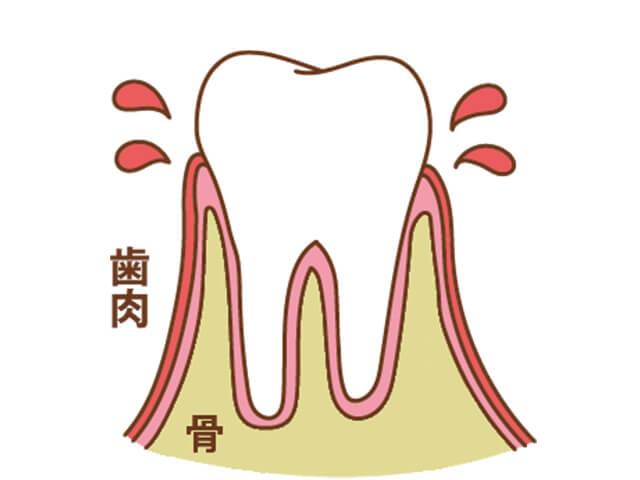 [進行度1] 歯肉炎の状態。歯ぐきがはれ、出血する
