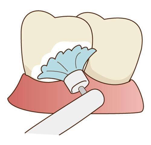 専用の器具で歯を綺麗にします