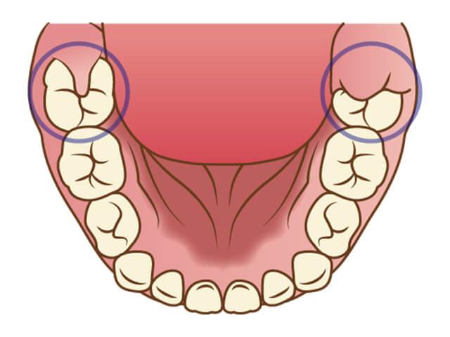 まだ歯肉が被っている生えかけの6才臼歯