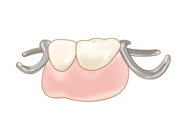 一部の歯を失ってしまった場合の部分入れ歯