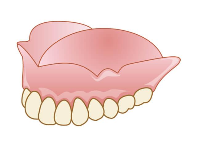 すべての歯を失ってしまった場合の総入れ歯