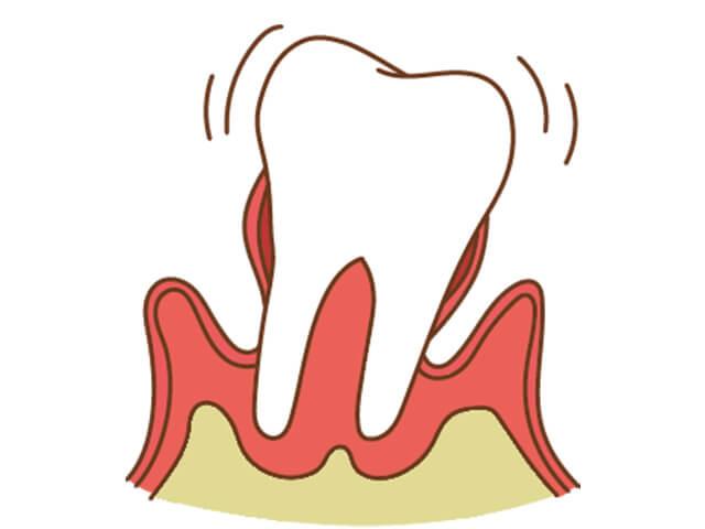[進行度4] 歯が抜けてしまうような状態。硬いものが食べられなくなる