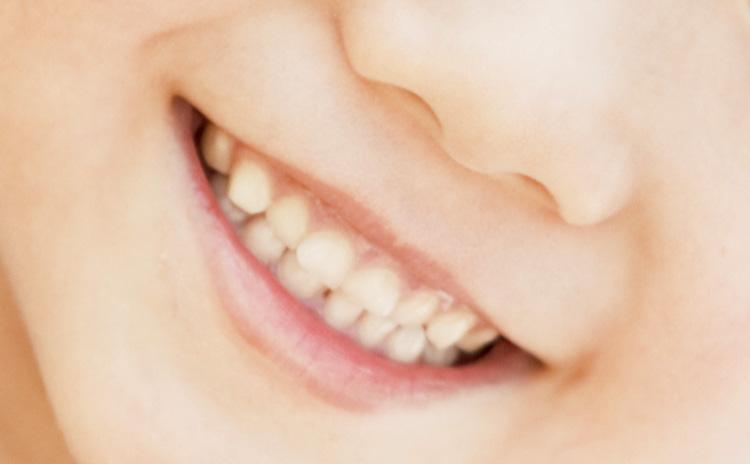 乳歯のエナメル質や象牙質