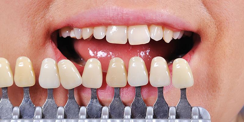 白い歯への修復