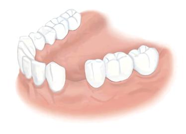 術前(歯を1本失った場合)