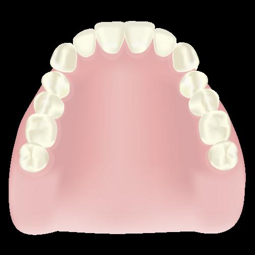 トリートメントデンチャー(治療用入れ歯)