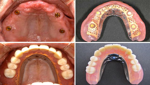 インプラント治療(義歯タイプ) 磁性アタッチメント義歯