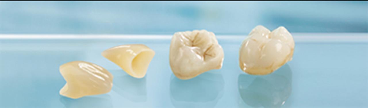 POINT3  修復物を歯科医院で作成するためリーズナブルで経済的