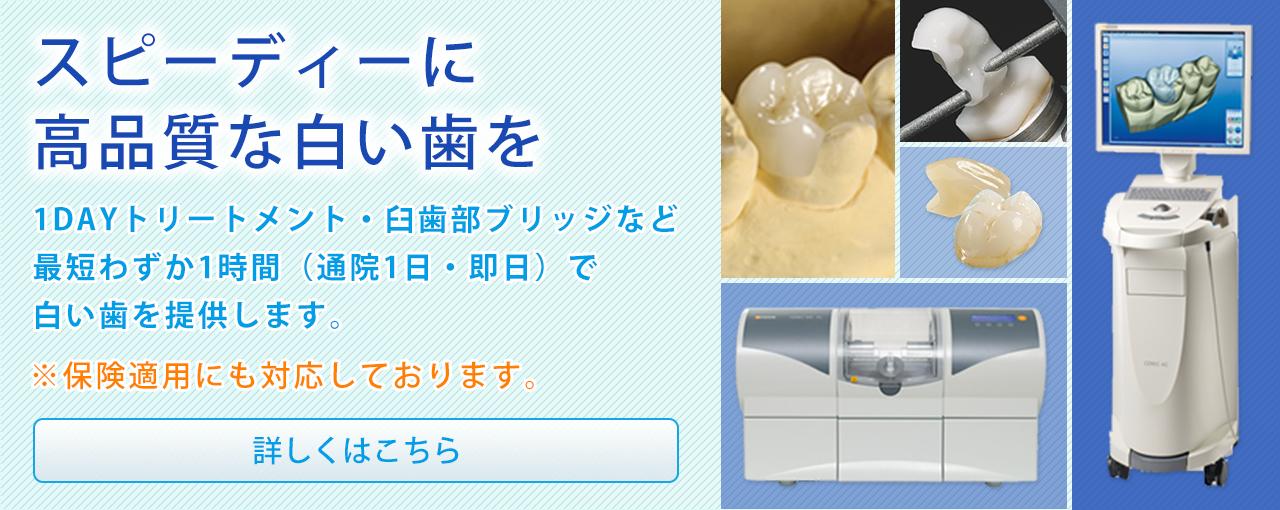 スピーディーに高品質な白い歯を