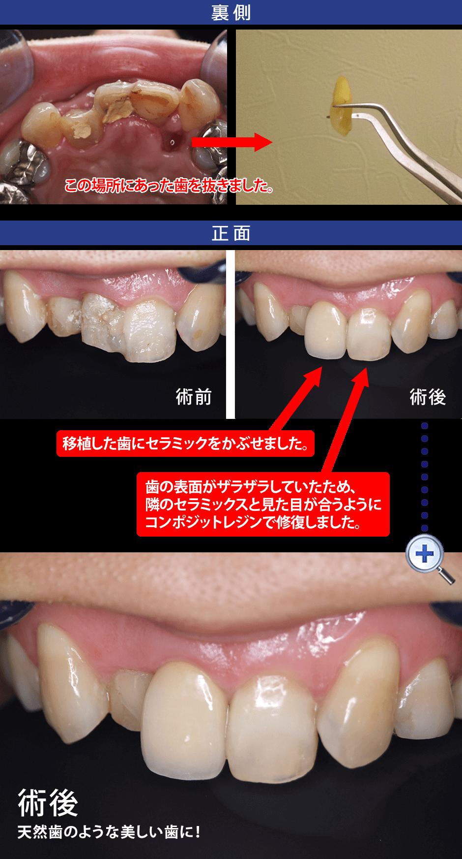 歯の移植 症例