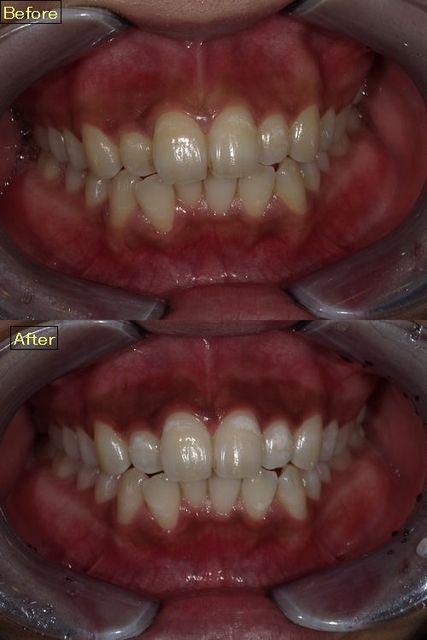 歯のホワイトニング(オフィスホワイトニング)